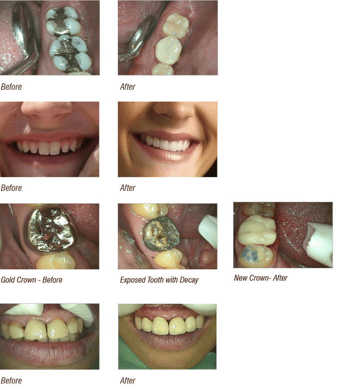 before and after cosmetic dentistry image
