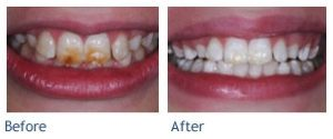 Cosmetic Dentistry at Castle Valley Dental